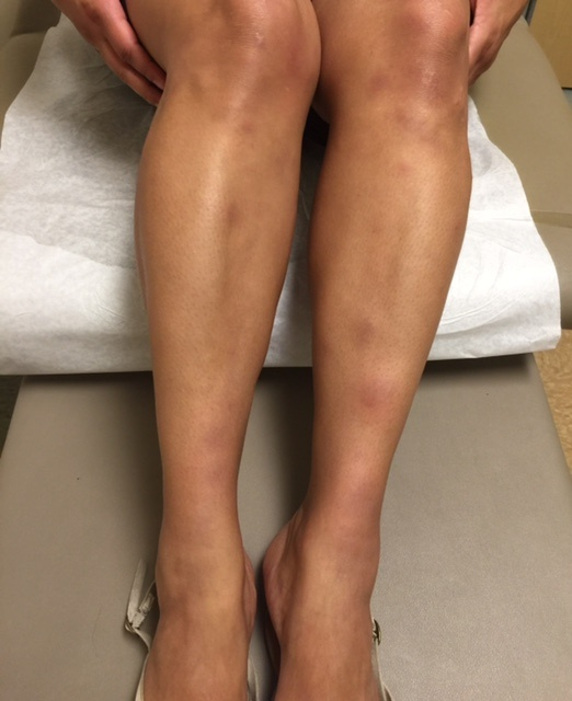 Recent valley fever patient presenting with rash