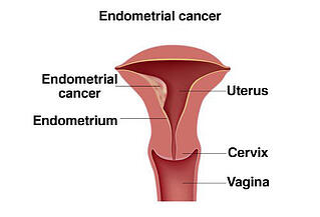 Endometrial-cancer.jpg